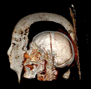 Ancient Eguptian mummy as imaged with CT scanner. Credit: Dr. Michael Miyamoto